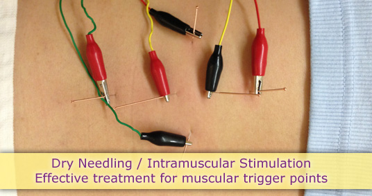 dry needling intramuscular stimulation effective treatment muscular trigger points point muscle red black needle wire skin acupuncture
