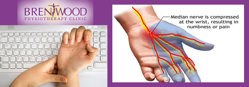 carpal tunnel syndrome wrist brentwood physio typing keyboard