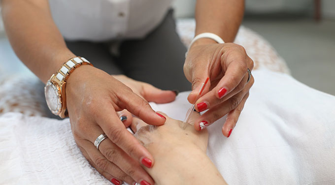 Brentwood Physiotherapy Acupuncture Services